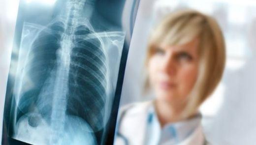 Bitkisel Yöntemlerle Akciğer iltihabı ve zatürre tedavisi