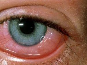 Kanlı göz iltihabı korunma yolları ve tedavisi