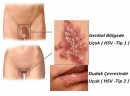 Genital Herpes Nedir ve Nasıl Tedavi Edilir?